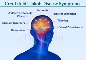 CreutzfeldtJakob Disease or CJD|Categories|Symptoms