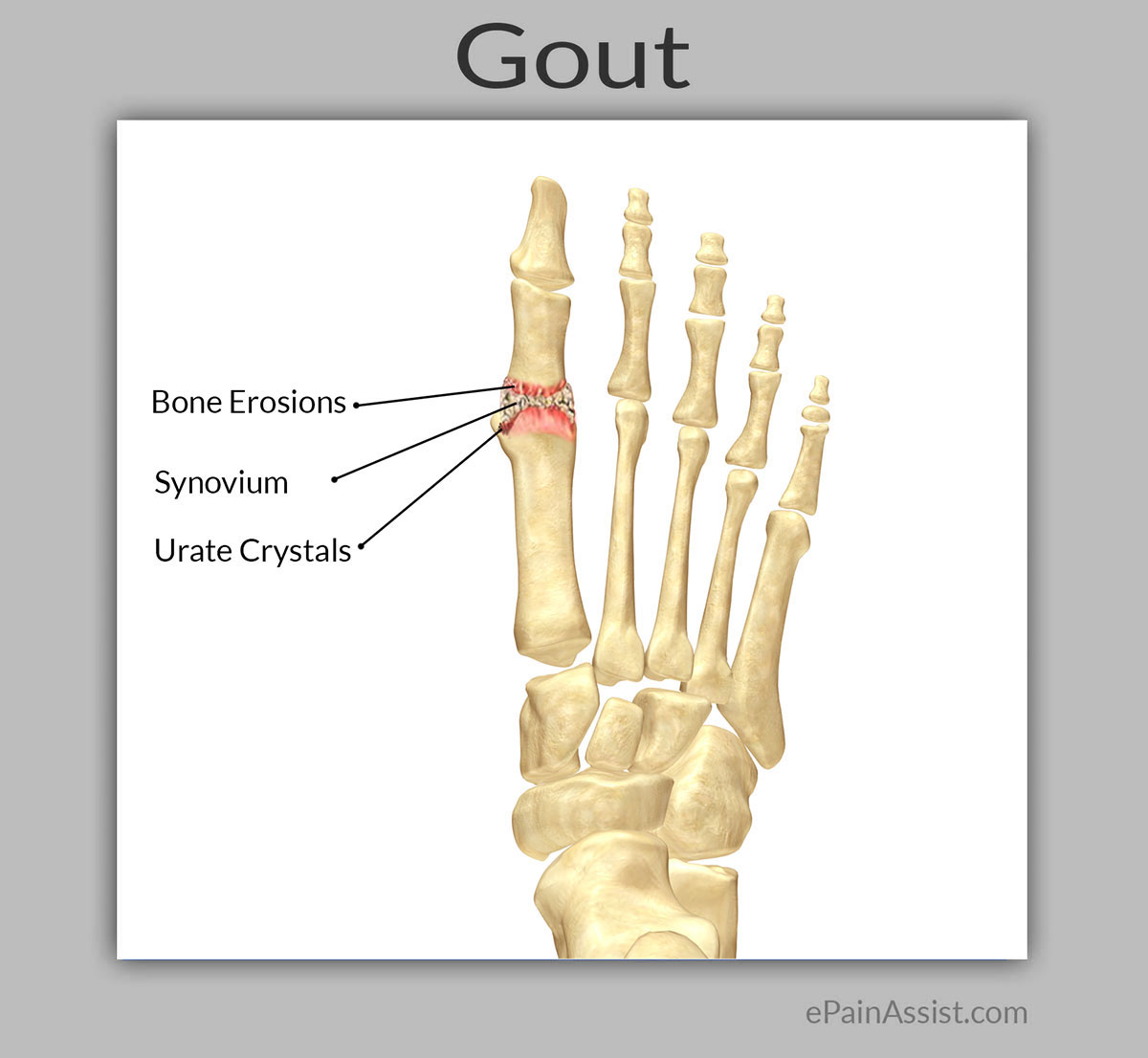 Massage Therapy for Gout|Dietary. Lifestyle Modifications. Toe. Self Massage