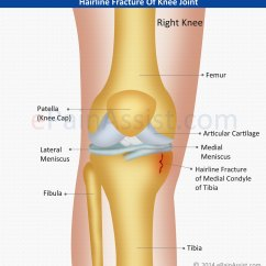 Diagram Of Tibia Stress Fracture Wiring For Dimmer Switch Uk Knee Joint Classification Types Causes Symptoms Signs Hairline