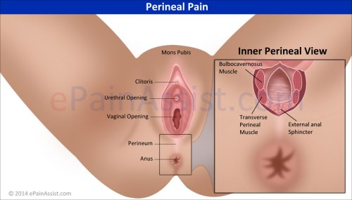small resolution of perineal