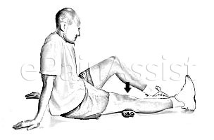 Patellofemoral Pain Syndrome Exercises, Physical Therapy