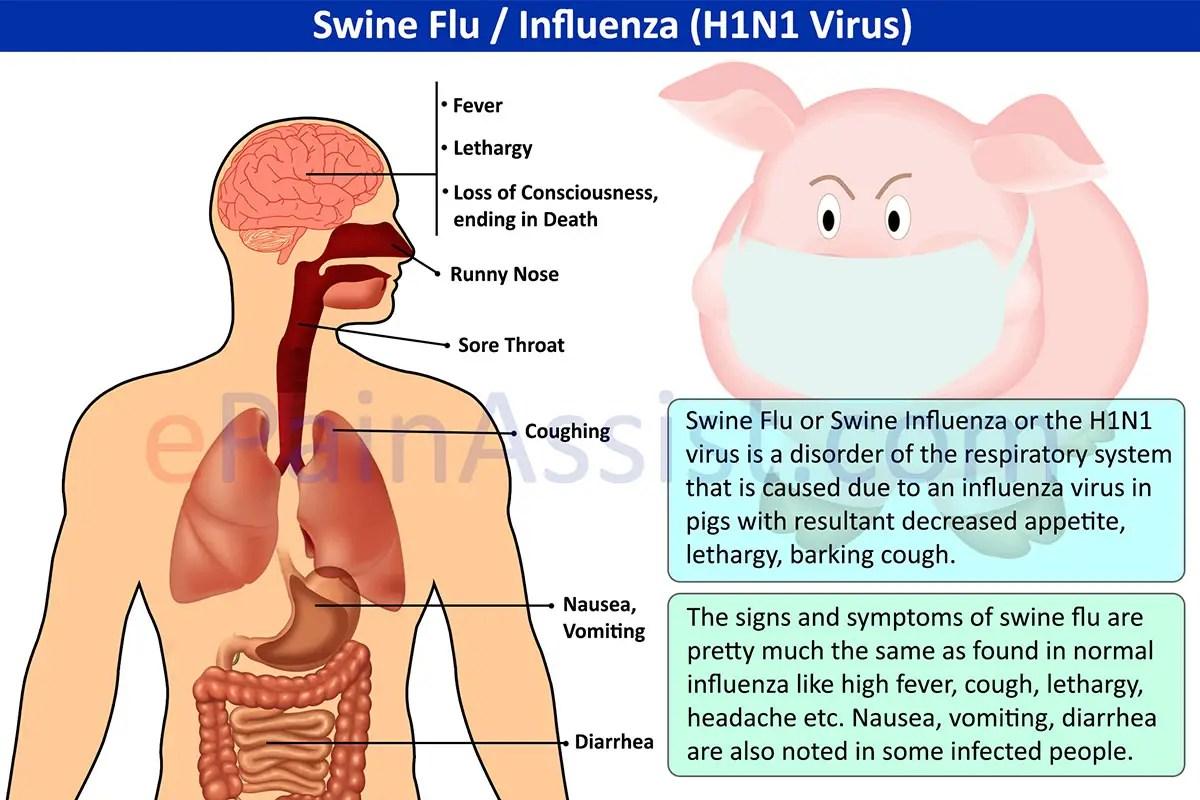 Swine Flu: Treatment, Symptoms, Signs, Risk Factors, Diagnosis