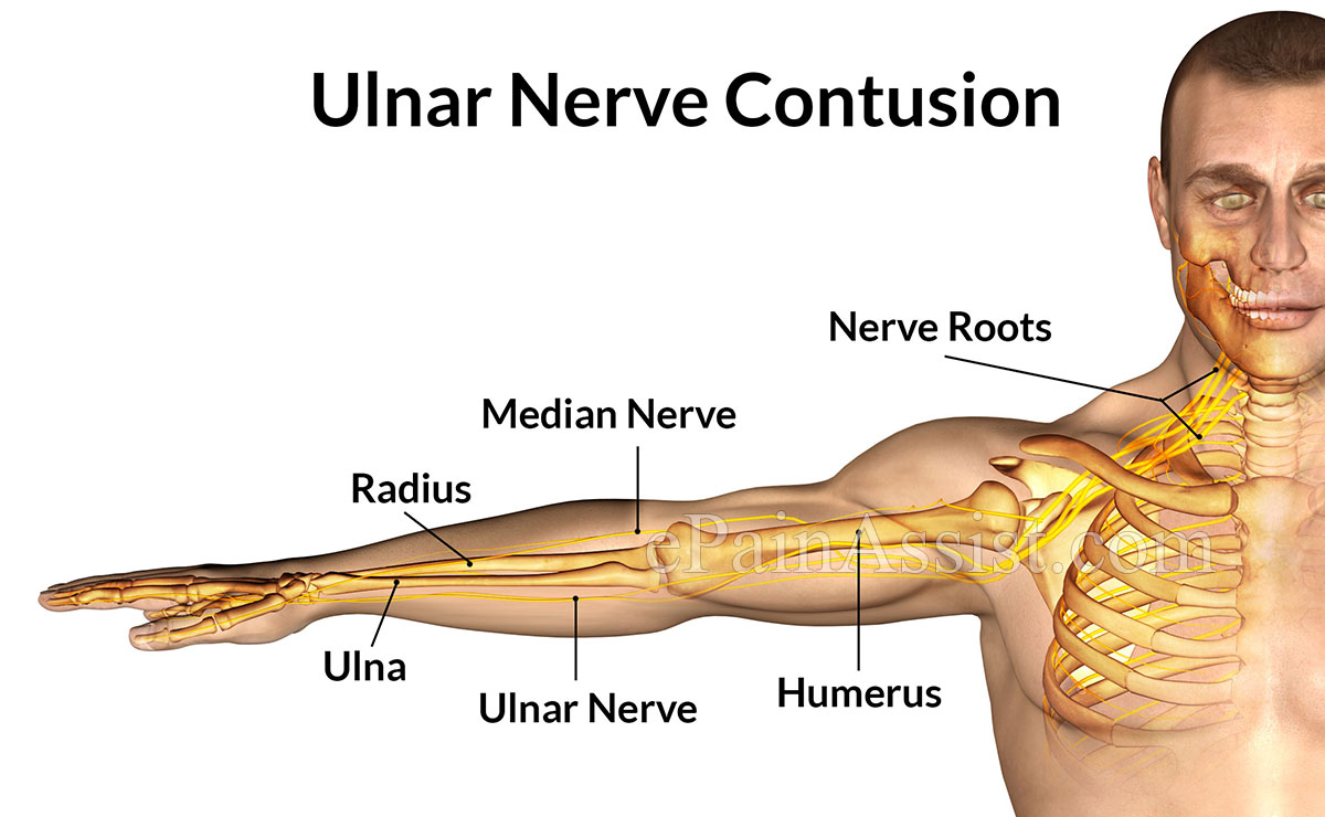 ulnar nerve diagram 2004 pontiac grand am wiring contusion symptoms causes treatment cold therapy cast exercises