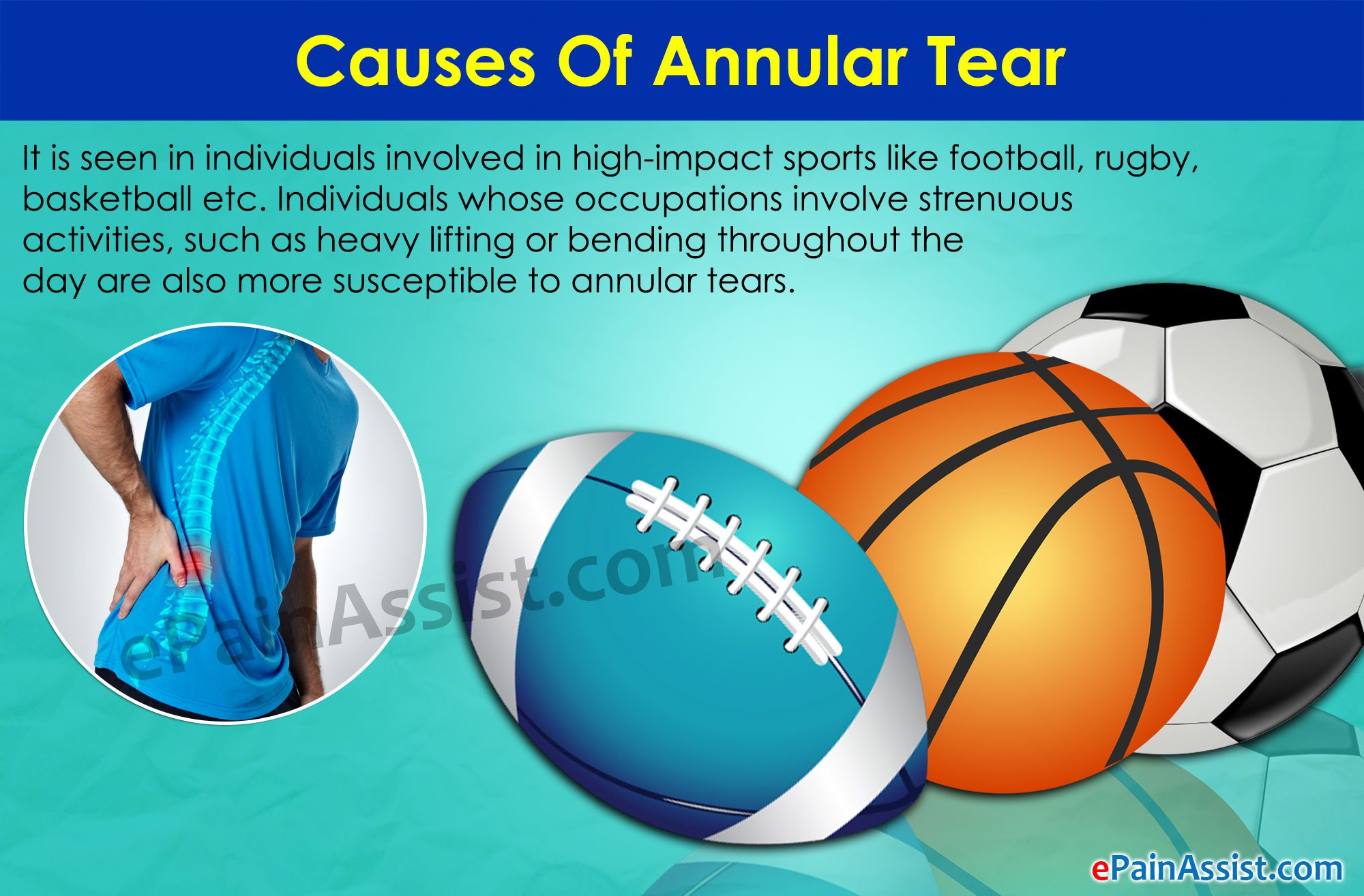 Causes Of Annular Tear