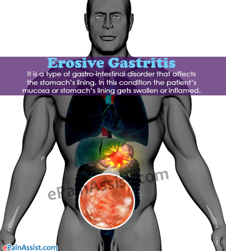 Foods To Eat For Atrophic Gastritis