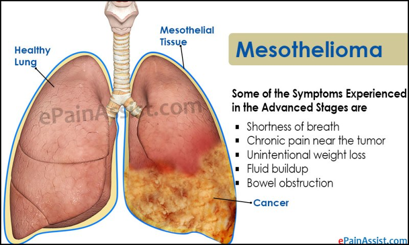 Image Result For Mesothelioma Diagnosis