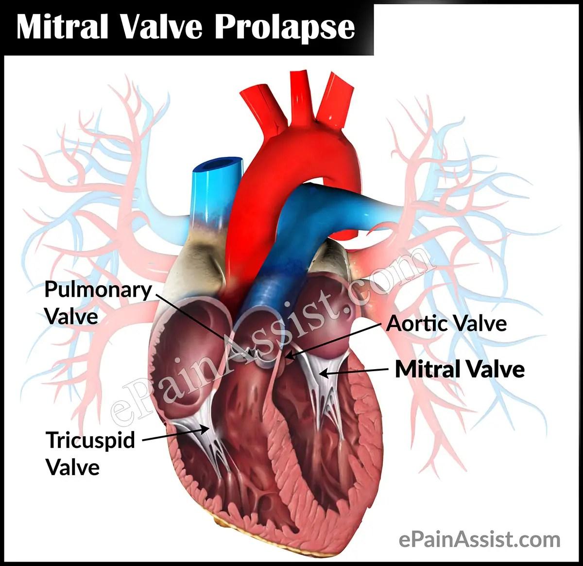 Mitral Valve Prolapse or Floppy Mitral Valve Syndrome