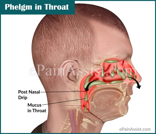 small resolution of associated symptoms of phelgm in throat or mucus in throat