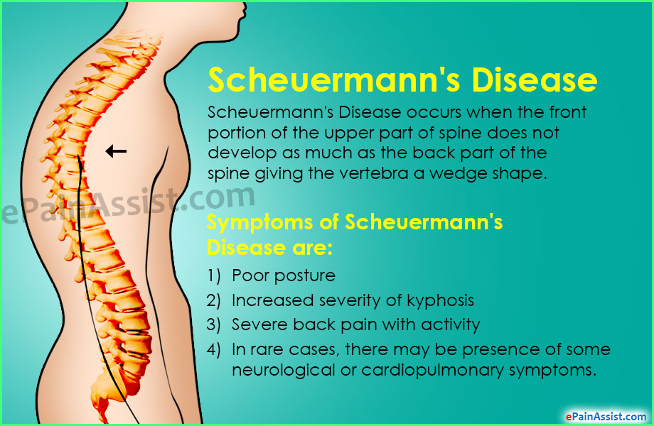 Image result for image Scheuermann's disease
