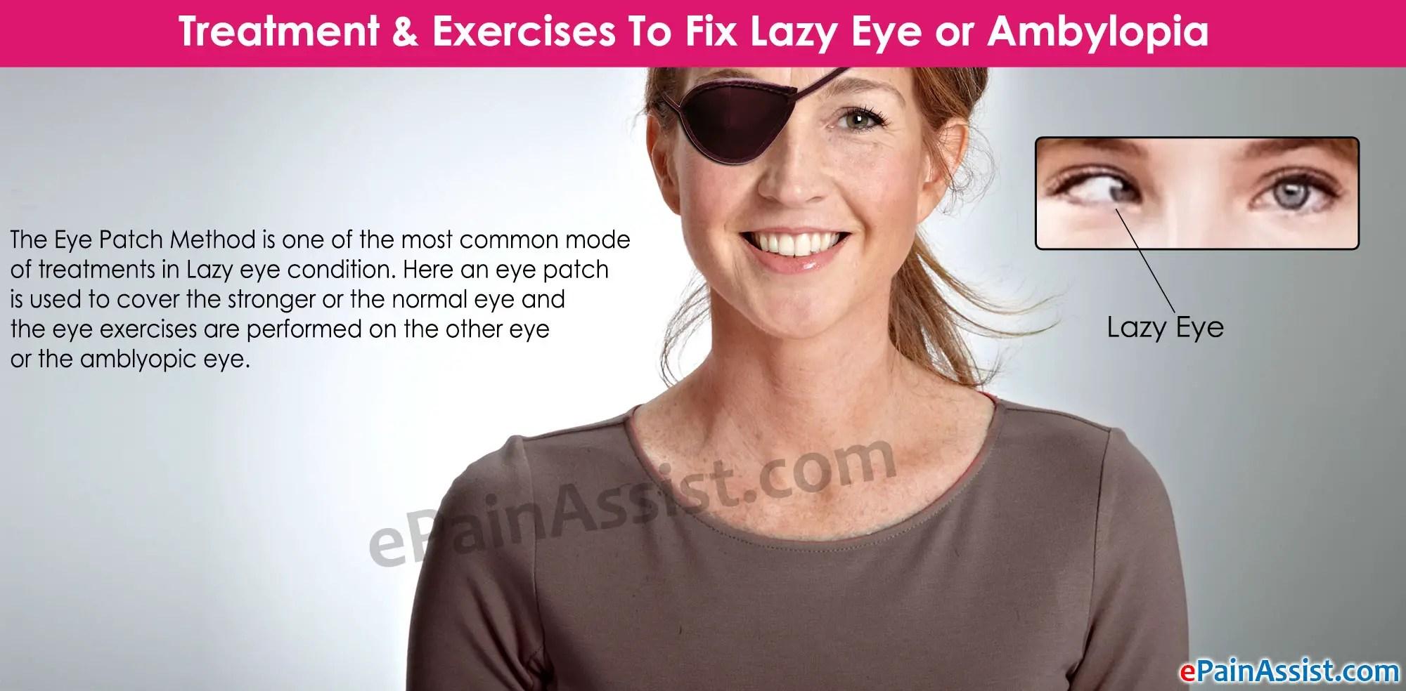 Treatment Amp Exercises To Fix Lazy Eye Or Ambylopia