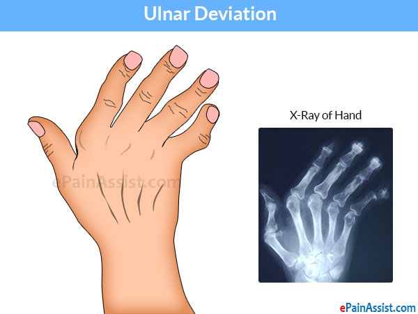 Ulnar Deviation