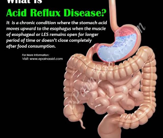 What Is Acid Reflux Disease