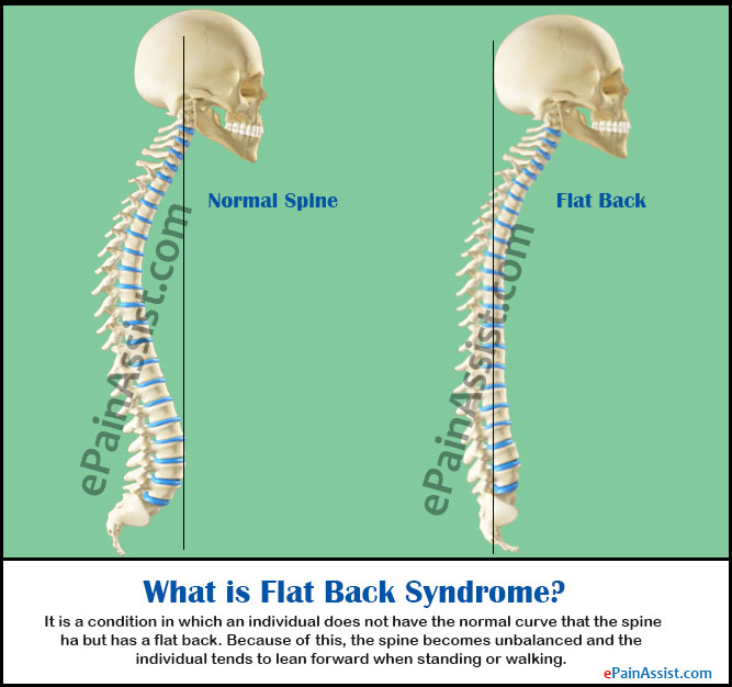 Flat Back Syndrome