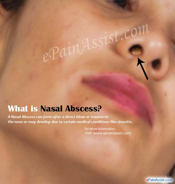 Staph Infection Inside Nose