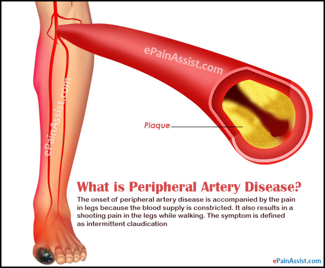 What is Peripheral Artery Disease Causes Signs Symptoms ...