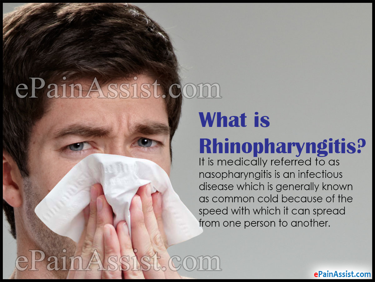 What is Rhinopharyngitis or Acute Coryza