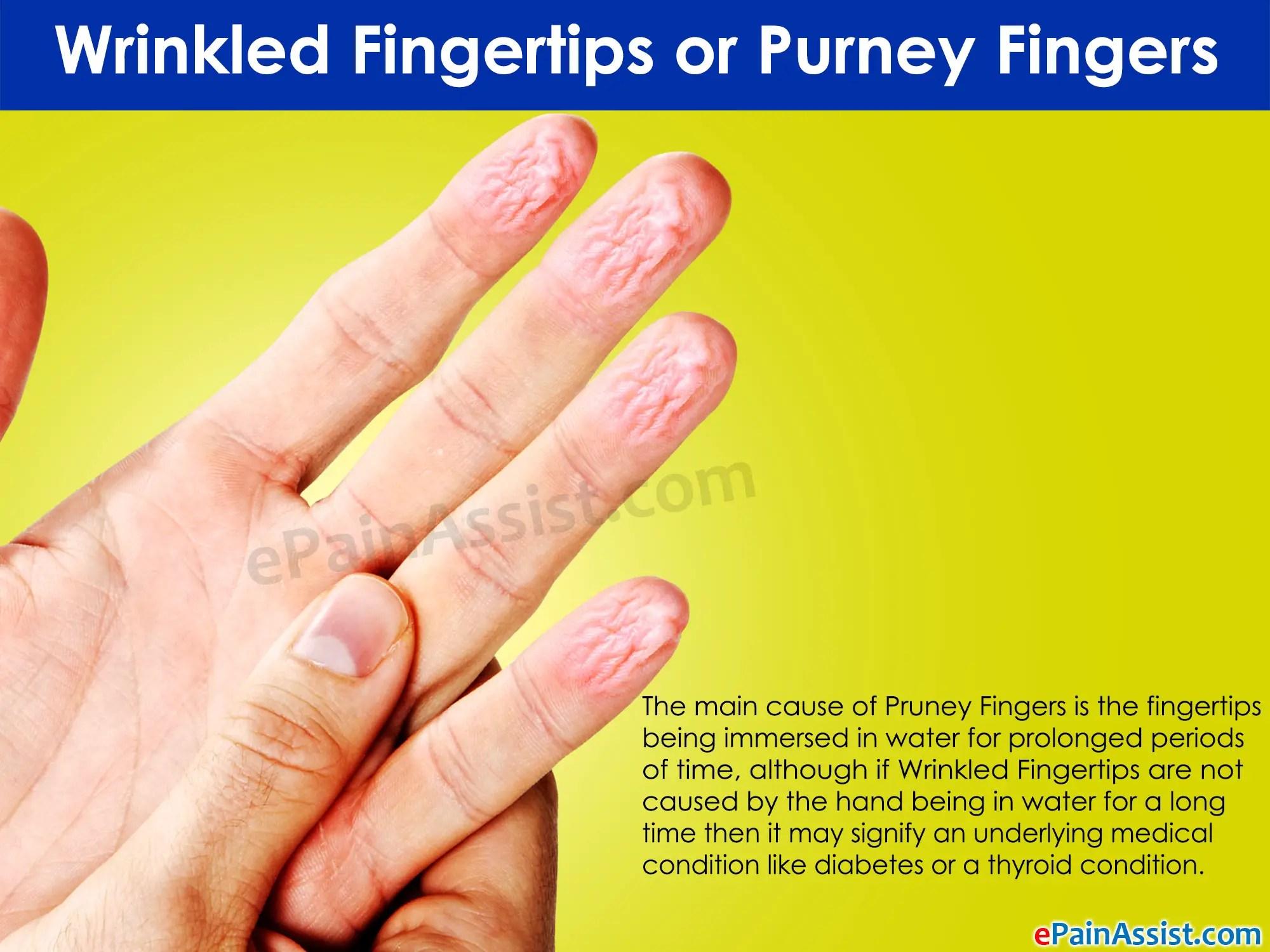 Wrinkled Fingertips What Do Pruney Fingers Indicate