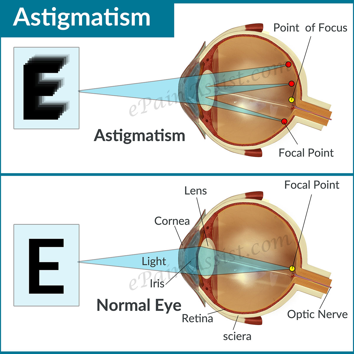 long and short sighted diagram discovery 2 seat wiring astigmatism causes types symptoms treatment lenses