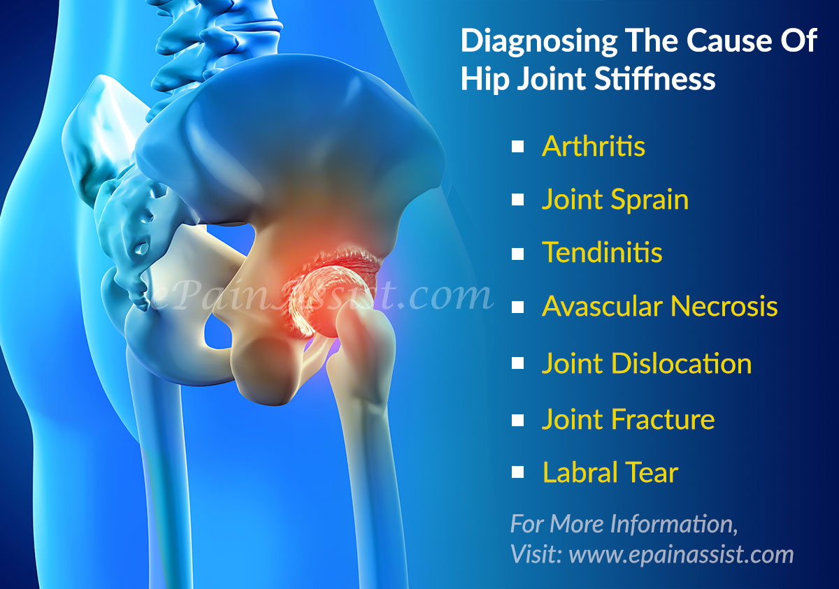hight resolution of diagnosing the cause of hip joint pain when accompanied with leg instability