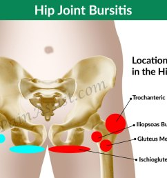 diagnosis and investigations for hip joint bursitis [ 1200 x 740 Pixel ]