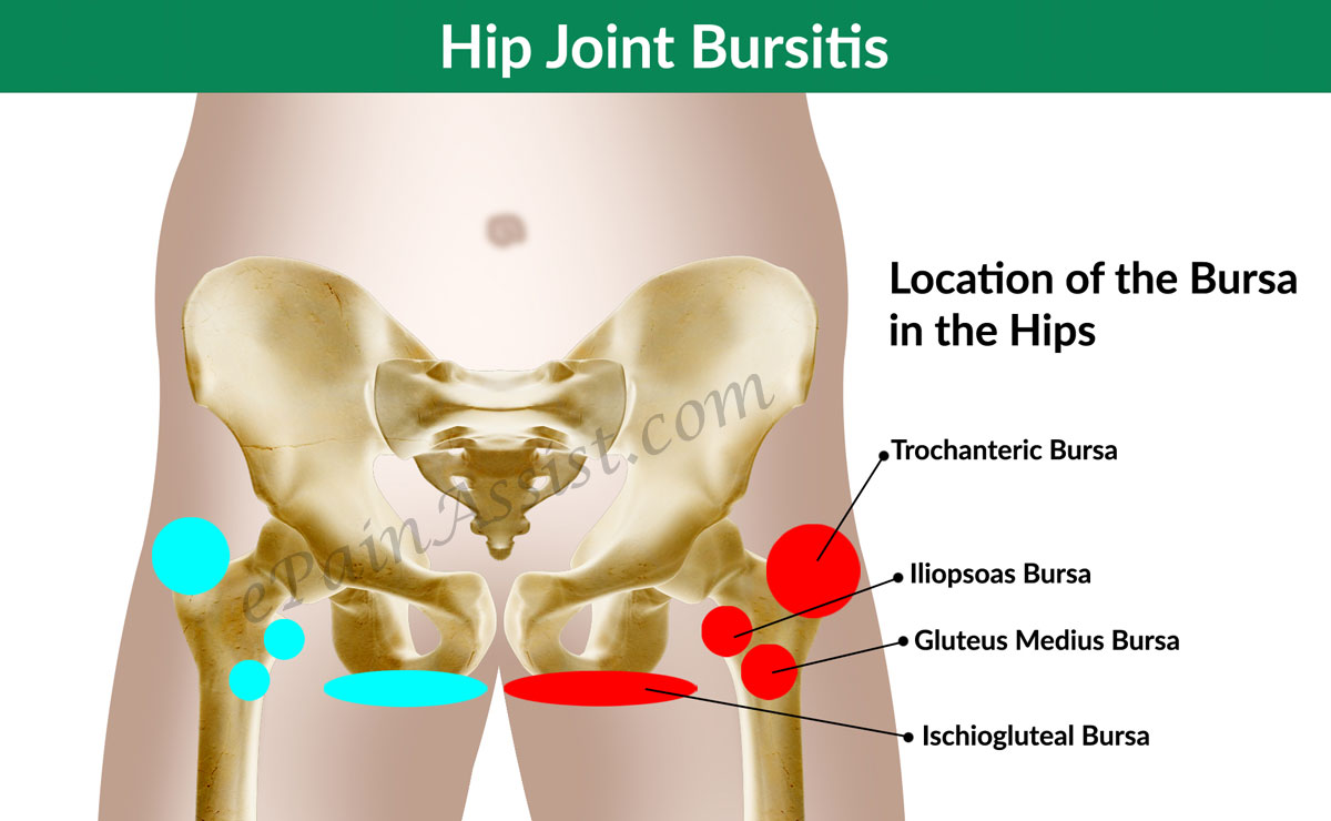 hight resolution of diagnosis and investigations for hip joint bursitis