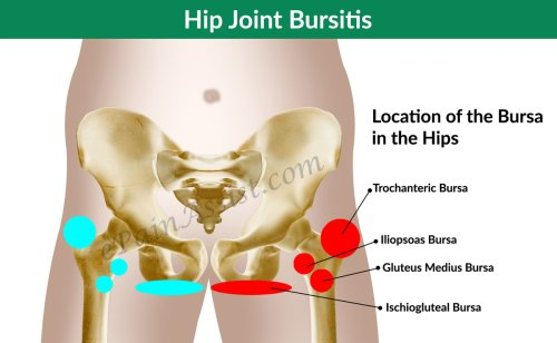 small resolution of diagnosis and investigations for hip joint bursitis