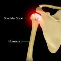 Shoulder Injuries Information Center: Biceps Tendon ...