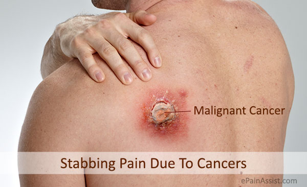 Stabbing Pain Due To Cancers