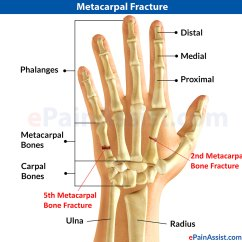 Outside Tendon Hand Diagram Single Phase Metacarpal Fracture Or Broken Hand|causes|symptoms|treatment|exercises