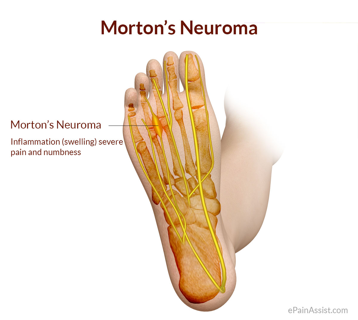 hight resolution of as you d guess this causes throbbing pain throughout the ball of the foot