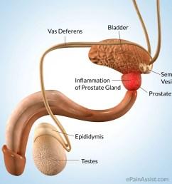 prostate pain [ 2152 x 1924 Pixel ]