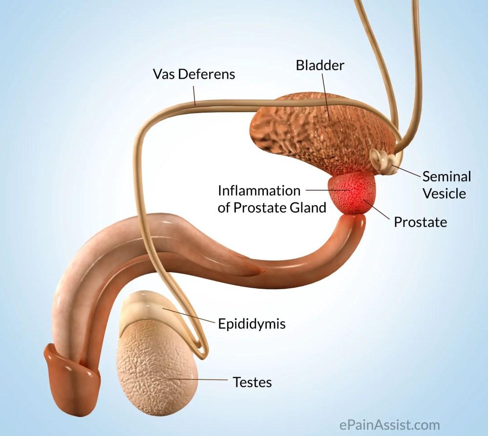 medium resolution of prostate pain