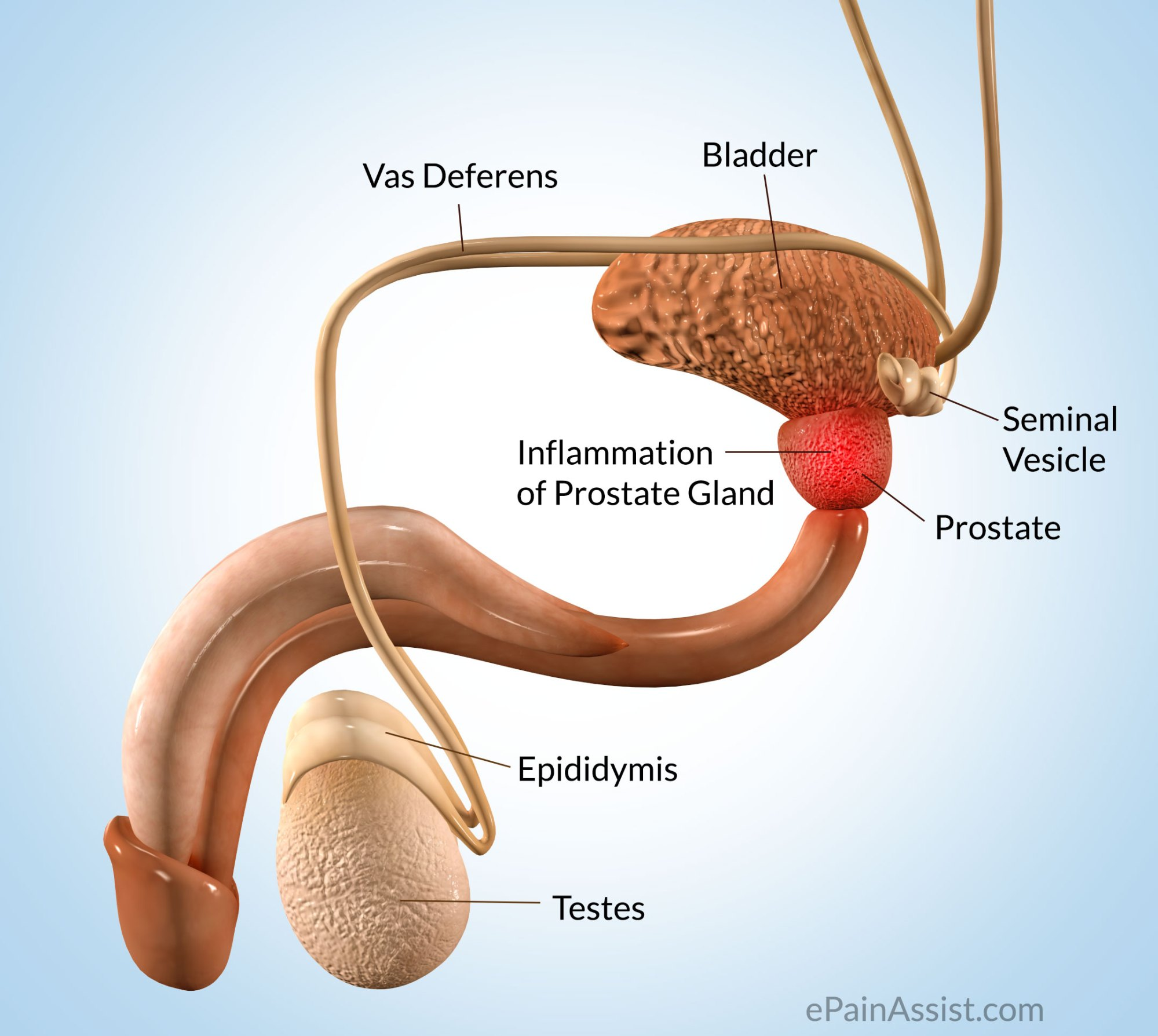 hight resolution of prostate pain
