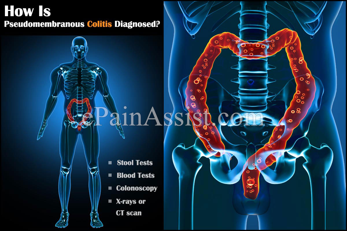 What Is Pseudomembranous Colitis?