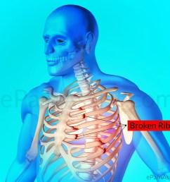 rib fracture or broken rib [ 1200 x 976 Pixel ]