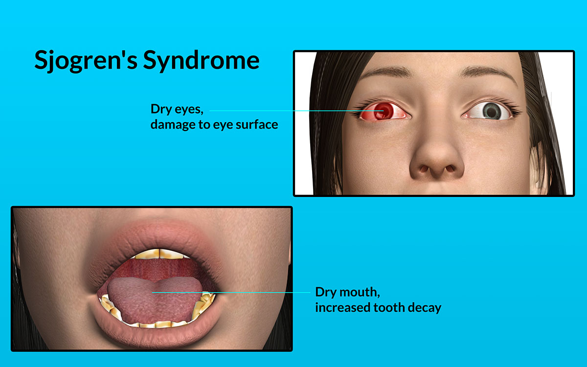 Sjogrens SyndromeCausesRisk FactorsSignsSymptoms