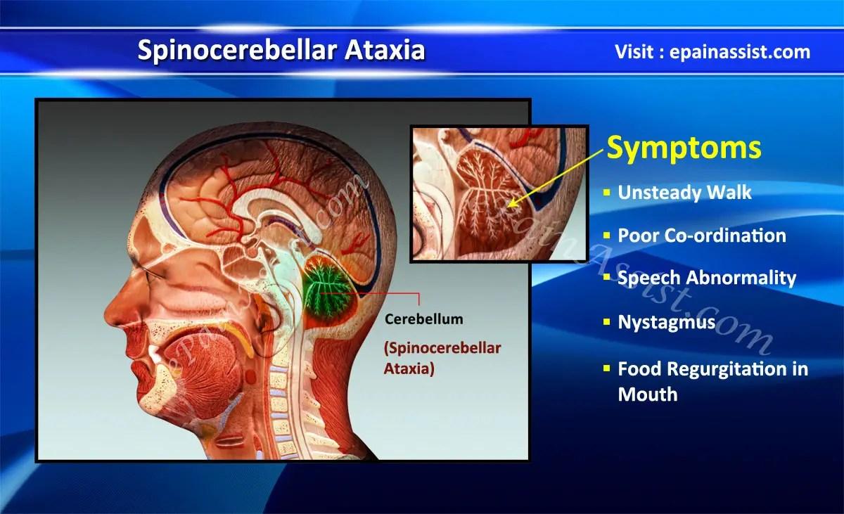 Spinocerebellar Ataxia Treatment Symptoms Life Expectancy ...