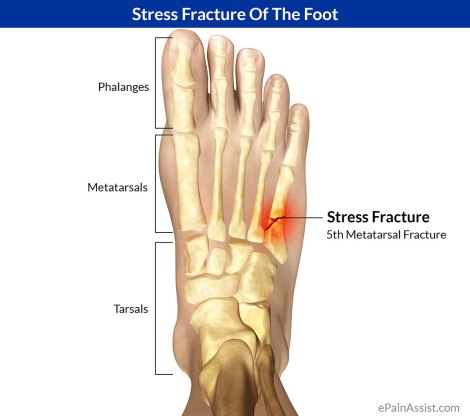 Image result for foot stress fracture