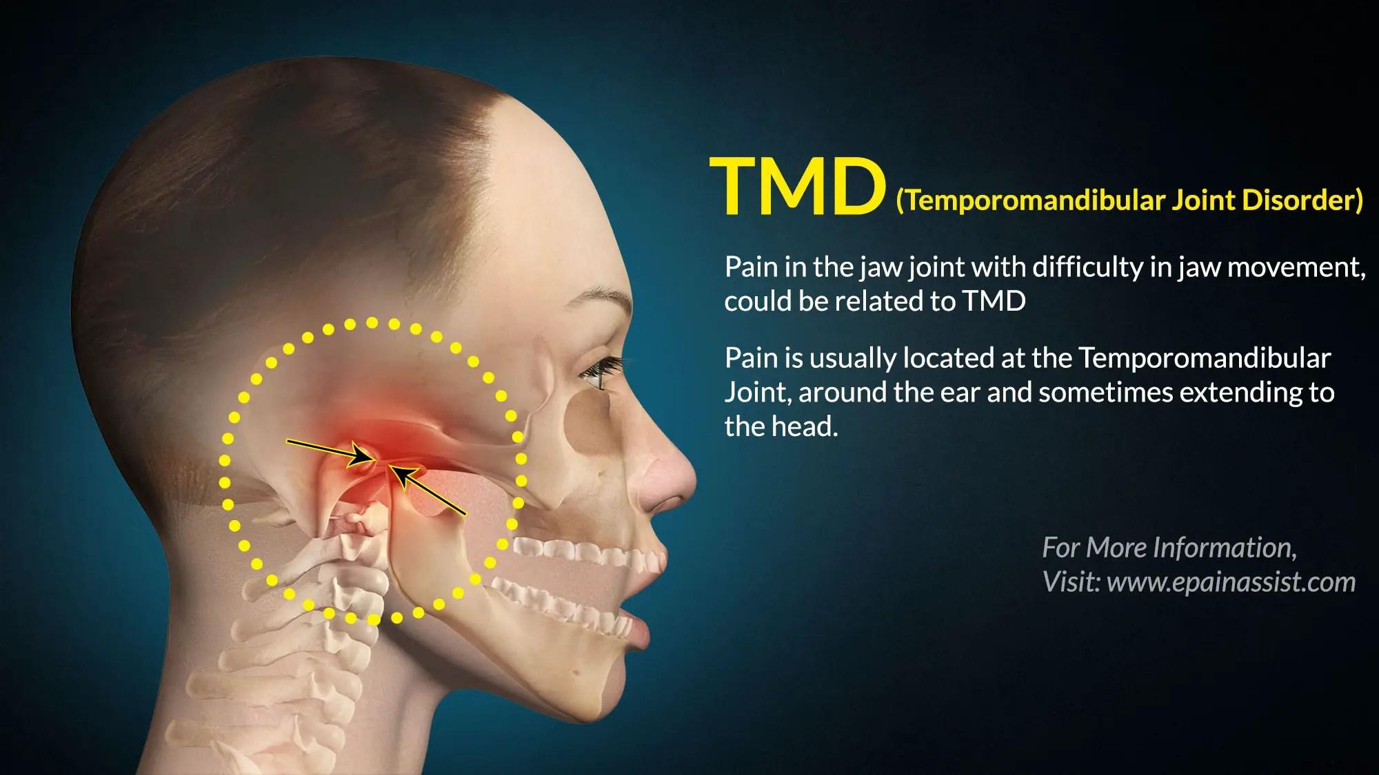 TMD: Treatment. Exercises. Tips. Causes. Symptoms. Diagnosis