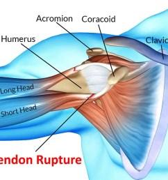 what is biceps tendon rupture  [ 1200 x 675 Pixel ]