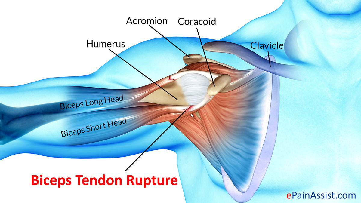 hight resolution of what is biceps tendon rupture