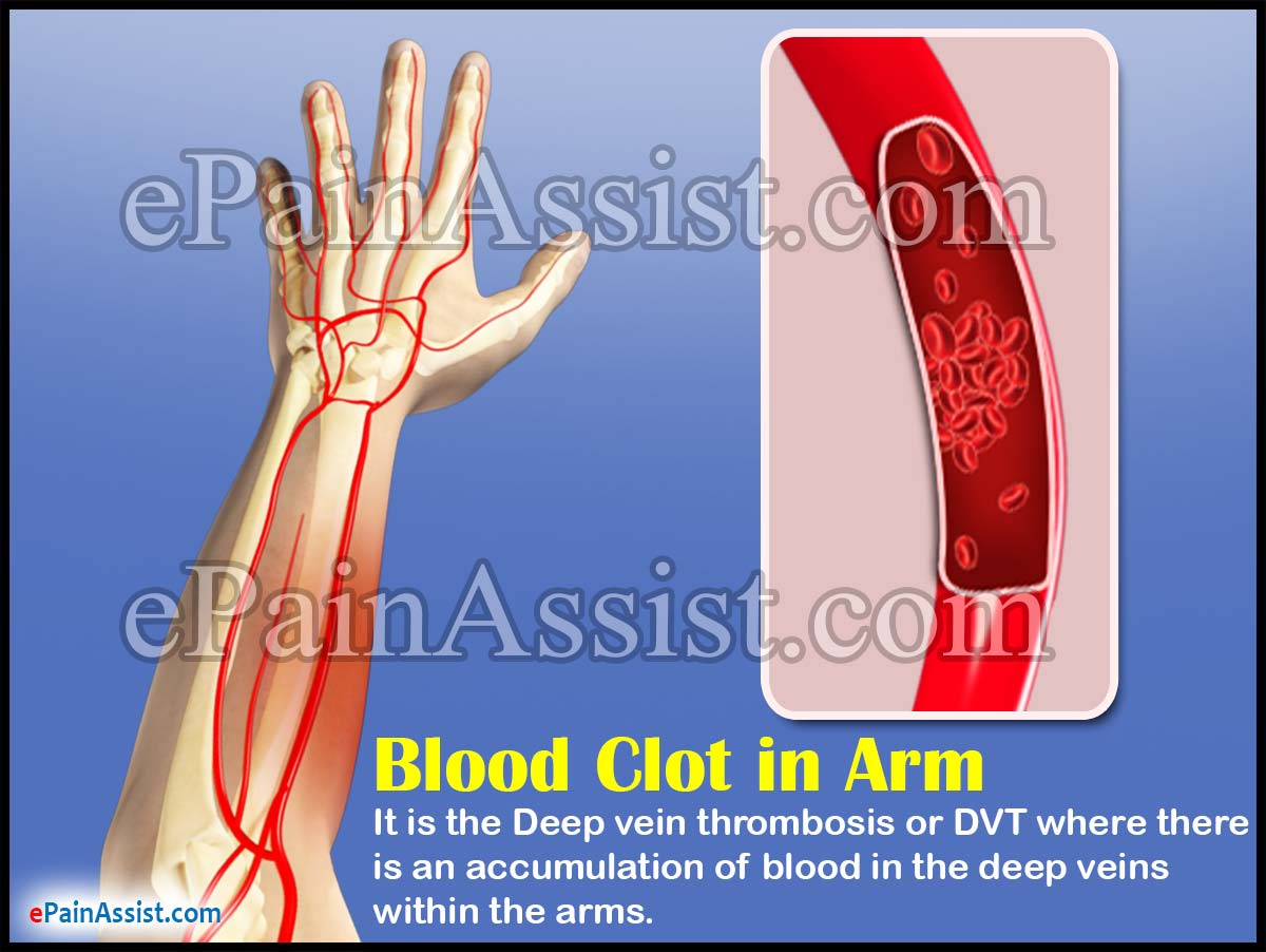 small resolution of blood clot in arm