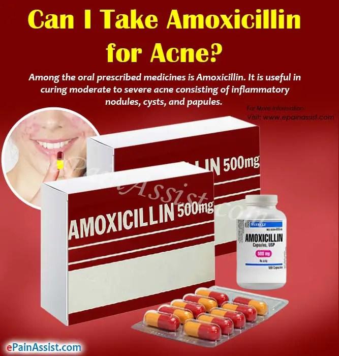 Can I Take Amoxicillin for Acne