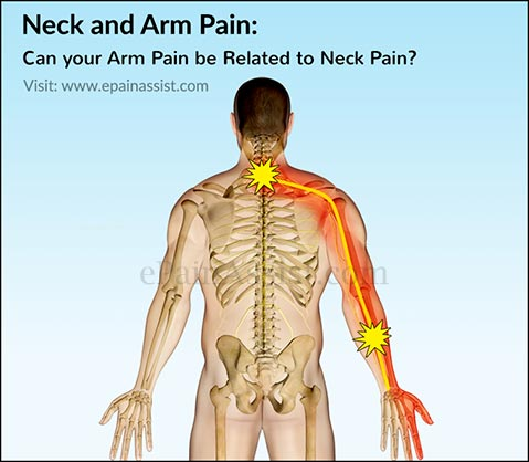 nerves in neck and shoulder diagram lifan 110 atv wiring arm pain can your be related to