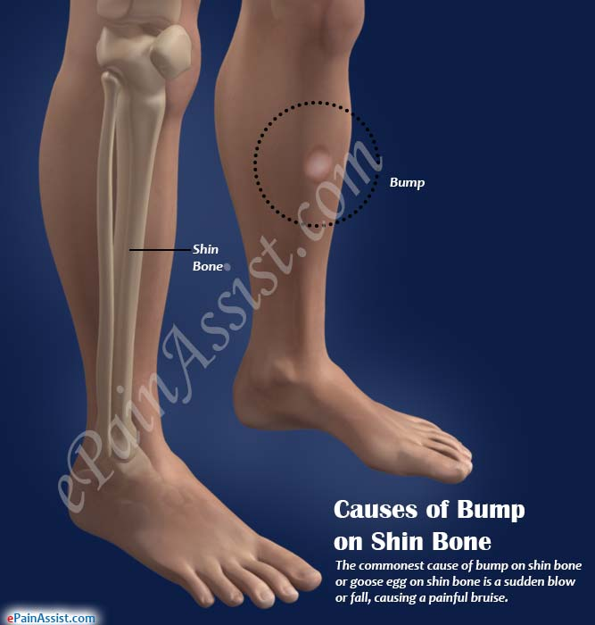 Causes of Bump on Shin Bone