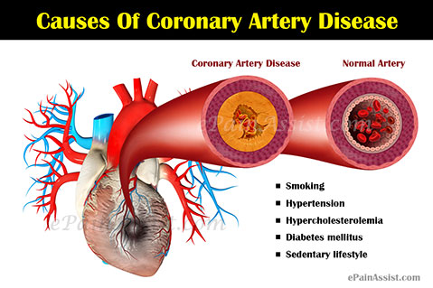 Image result for coronary artery disease