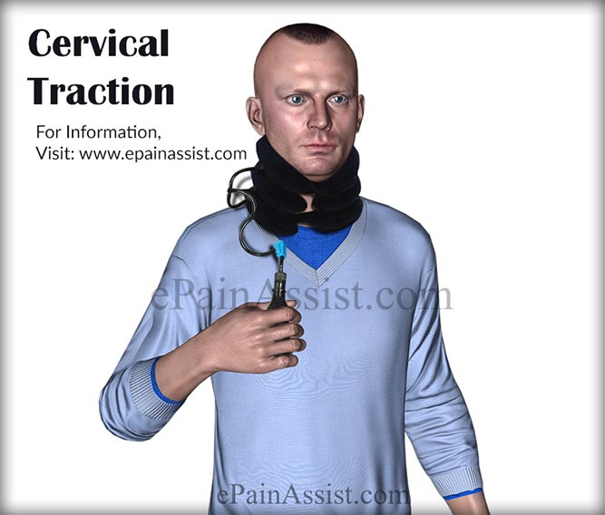 Cervical Spinal Traction