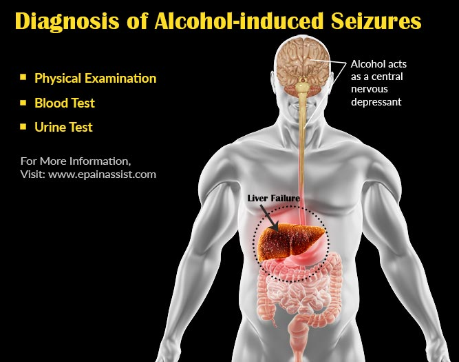 Diagnosis Of Alcohol Induced Seizures