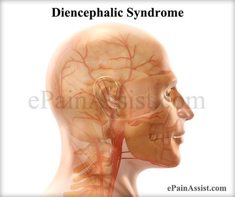 Diencephalic Syndrome