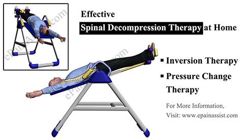 Spinal Decompression at HomeTherapies Devices Exercises
